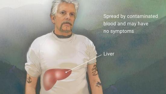 تفشي وباء الفيروس الكبدي أ (Hepatitis A) في مدينة سان دييقو جنوبي ولاية كاليفورنيا.
